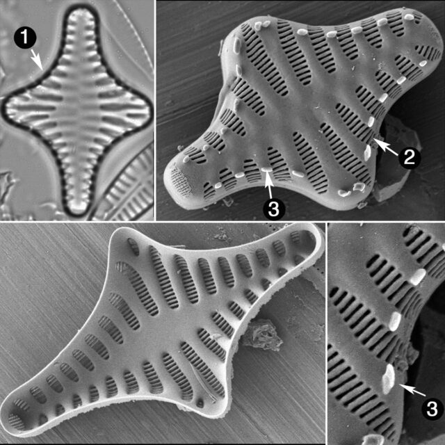 Staurosirella Leptostauron Guide
