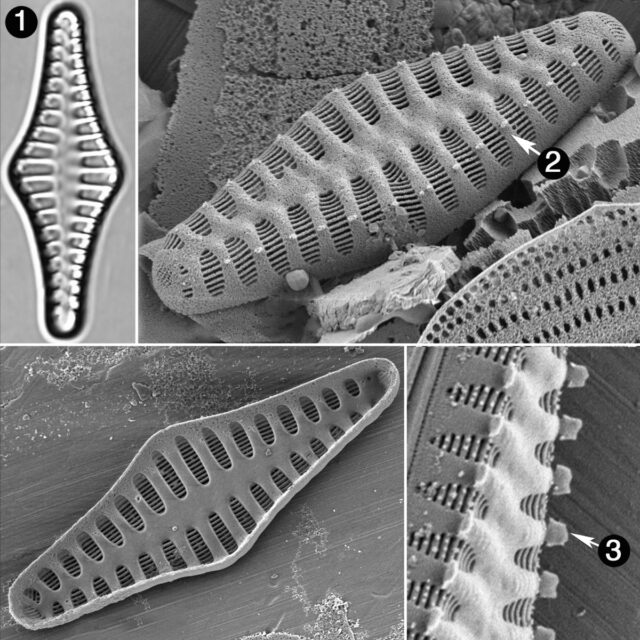 Staurosirella Rhomboides Guide