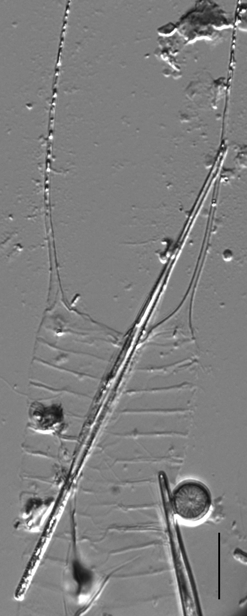 Acanthoceras zachariasii LM1