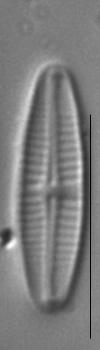 Achnanthidium pyrenaicum LM2
