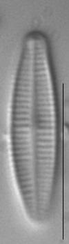 Achnanthidium pyrenaicum LM4