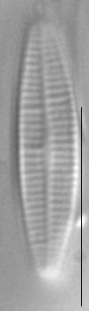 Achnanthidium pyrenaicum LM5