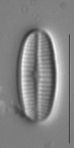 Achnanthidium rivulare LM2