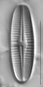 Achnanthidium rivulare LM3