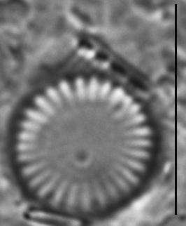 Cyclotella atomus LM7