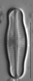 Achnanthidium reimeri LM1