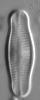 Achnanthidium reimeri LM2