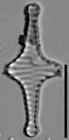 Staurosira stevensonii LM2