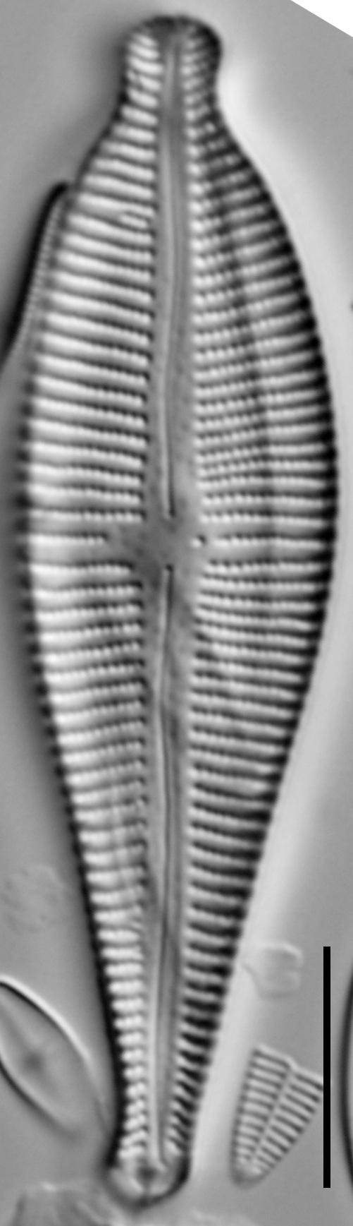 Gomphonema sphaerophorum LM6