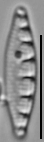 Grunowia solgensis LM5