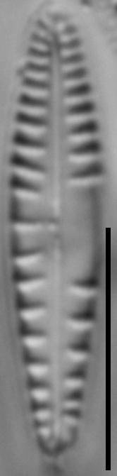 Gomphonema variostriatum LM2