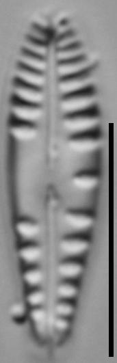 Gomphonema variostriatum LM3