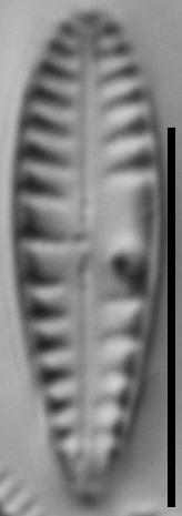 Gomphonema variostratum LM6