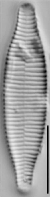 Fragilariforma virescens LM5