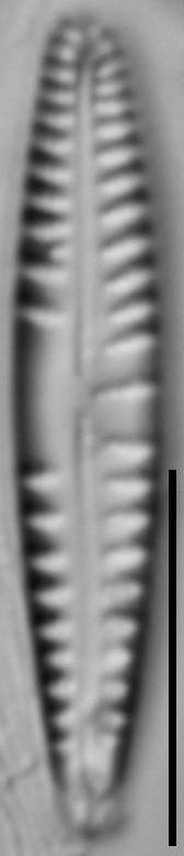Gomphonema variostriatum LM4