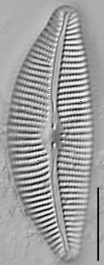 Cymbella turgidula LM1
