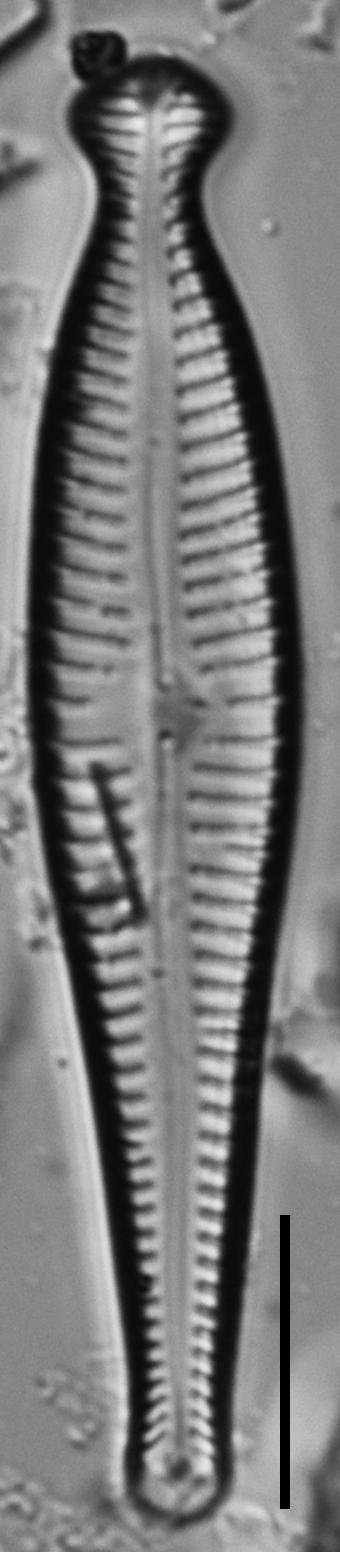 Gomphonema pseudosphaerophorum LM1