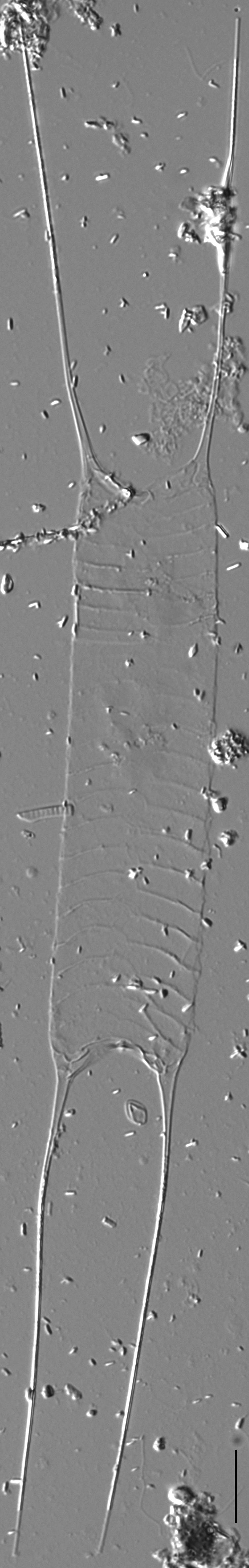 Acanthoceras zachariasii LM2