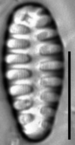Staurosirella martyi LM10