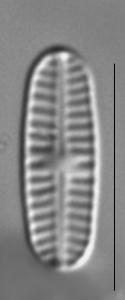 Rossithidium nodosum LM6