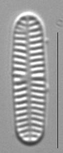 Rossithidium nodosum LM10