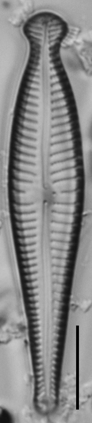 Gomphonema pseudosphaerophorum LM2