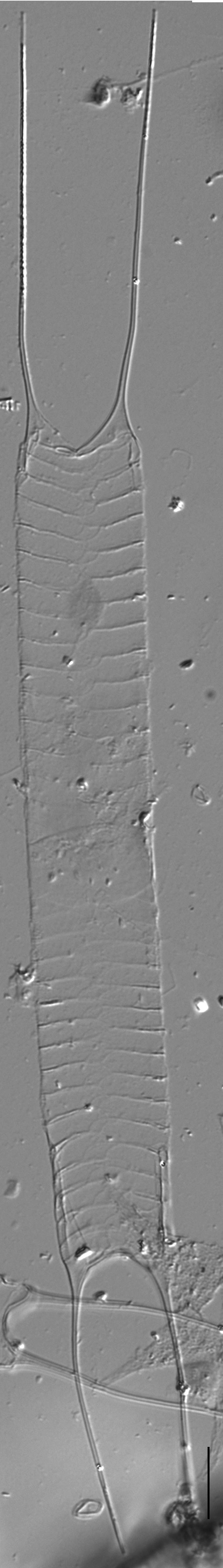 Acanthoceras zachariasii LM3