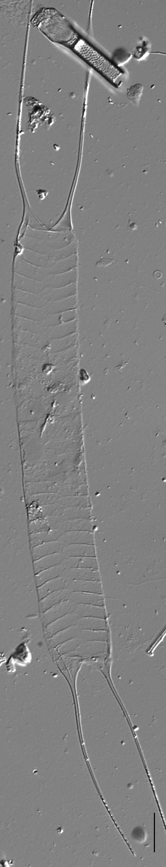 Acanthoceras zachariasii LM4