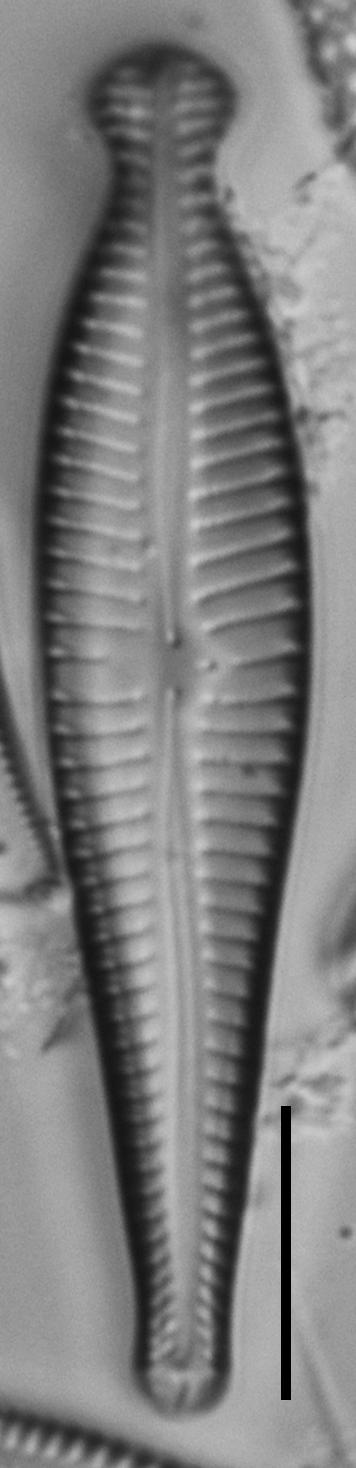 Gomphonema pseudosphaerophorum LM4