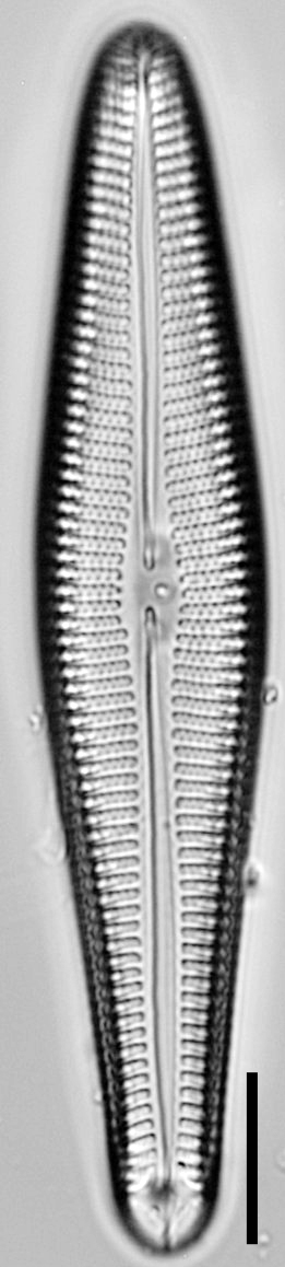 Gomphoneis oreophila LM7