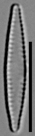 57578  Fragilaria Pennsylvanica 13
