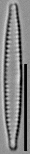 57578  Fragilaria Pennsylvanica 19