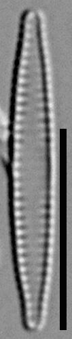 57578  Fragilaria Pennsylvanica A2