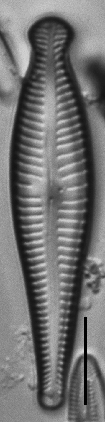 5 Gpseudosphaerophorum 104739A