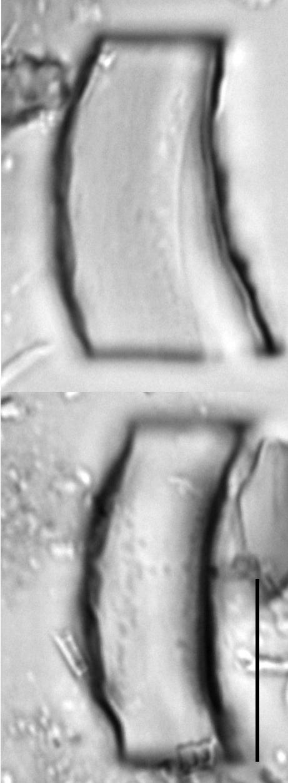 Acanthoceras zachariasii LM7