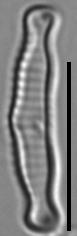 9C58627  Eunotia Microcephala