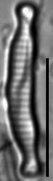 Eunotia microcephala LM3