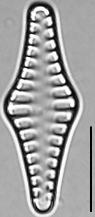 Staurosirella rhomboides LM5