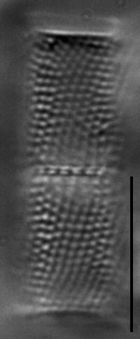 Aulacoseira ambigua LM2