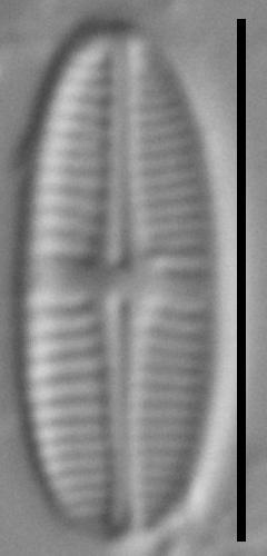 Achnanthidium delmontii LM5