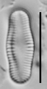 Achnanthidium Rosenstockii Vt10018 A 112117 72 C