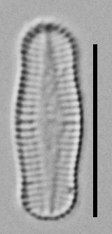 Achnanthidium Rosenstockii Vt10089 A 010418 05 C