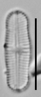 Achnanthidium Rosenstockii Vt10089 A 010418 10 C