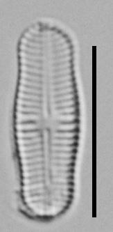 Achnanthidium Rosenstockii Vt10089 A 010418 11 C