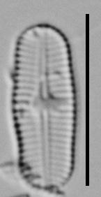 Achnanthidium Rosenstockii Vt10093 A 012618 02 C