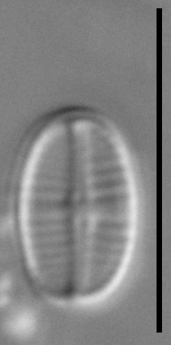 Achnanthidium delmontii LM7