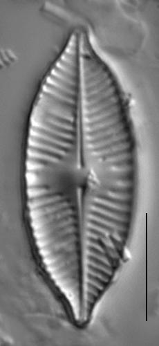 Planothidium apiculatum LM2
