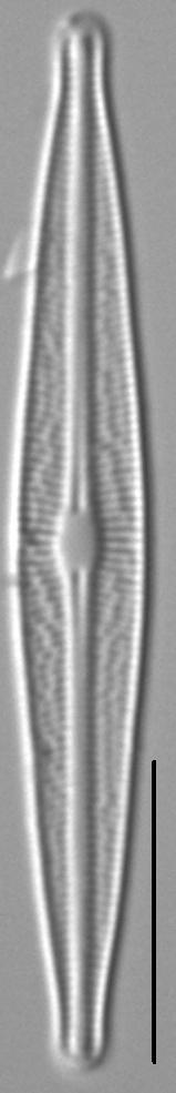 Brachysira Micro Morph1 3