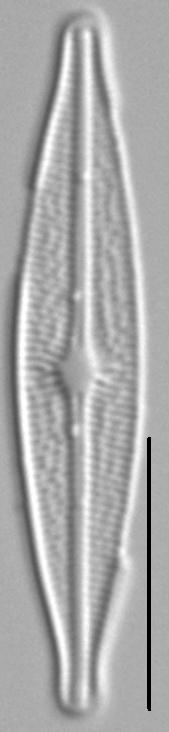 Brachysira Micro Morph1 5