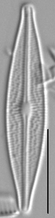 Brachysira Micro Morph1 6
